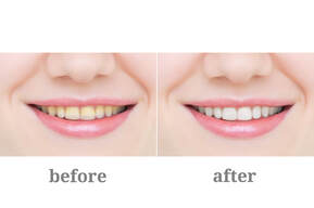 Laser Teeth Whitening Before and after