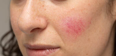 Facial's Spider Veins can be removed with Laser