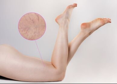 Leg's Spider Veins can be removed with Laser